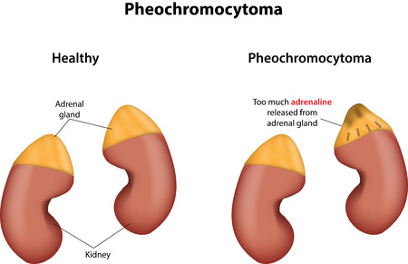 norepinephrine: Pheochromocytoma  Illustration