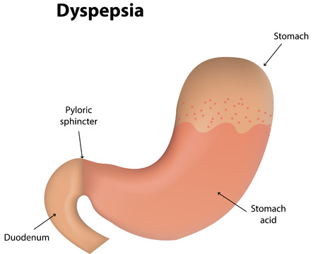 acid reflux: Dyspepsia