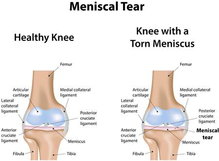 Meniscal Tear Vettoriali