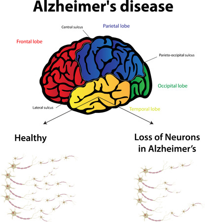 memory loss: Alzheimer s Disease Illustration