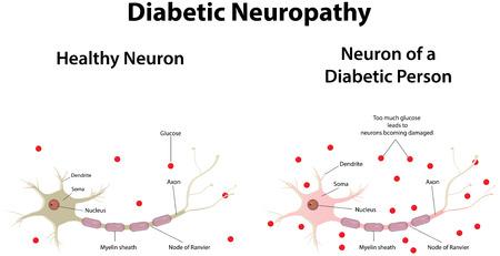 糖尿病性のニューロパシー  イラスト・ベクター素材
