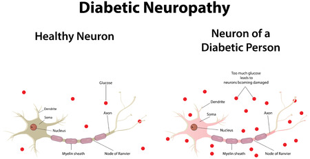 hyperglycemia: Diabetic Neuropathy