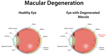 degeneration: Age Related Macular Degeneration Illustration