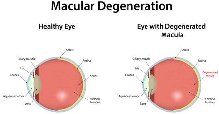 Age Related Macular Degeneration Vettoriali