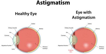 vitreous: Astigmatism