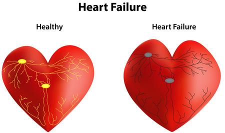 myocardium: Insufficienza cardiaca Vettoriali