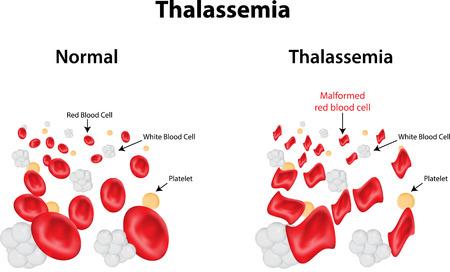 thalassemia: Thalassemia Illustration
