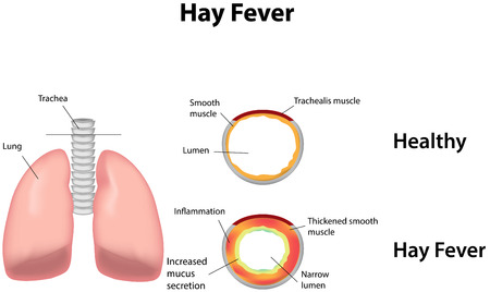histamine: Hay Fever Illustration