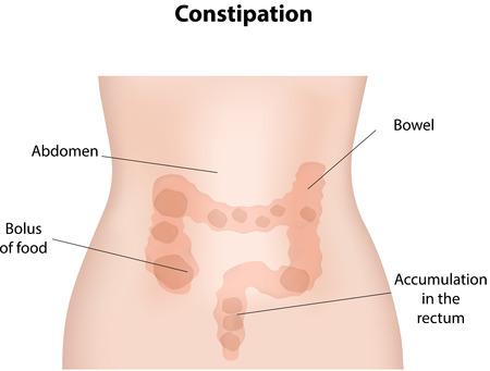 sistema digestivo: Estreñimiento Vectores