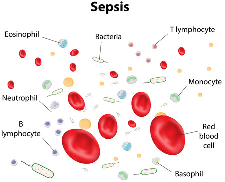 Sepsis Labeled Diagram Vector