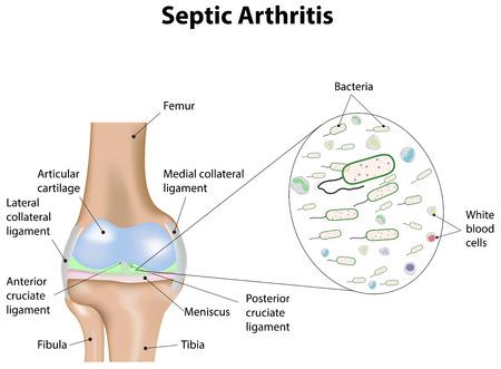 musculoskeletal: Septic Arthritis
