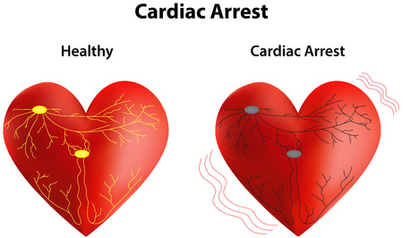conducting: Cardiac Arrest Illustration