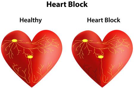 myocardium: Heart Block