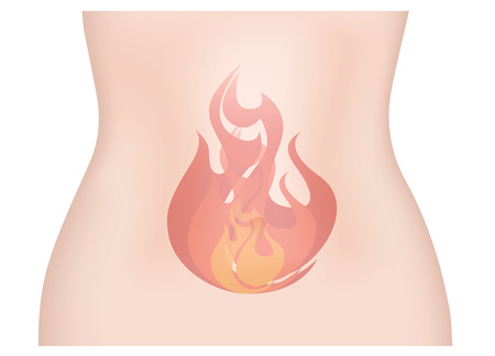 gastro: Stomach Ache Refulx Illustration
