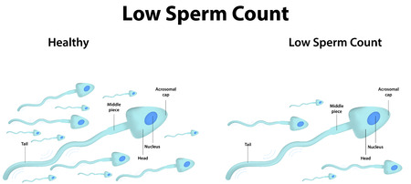 esperma: Baja cantidad de espermatozoides