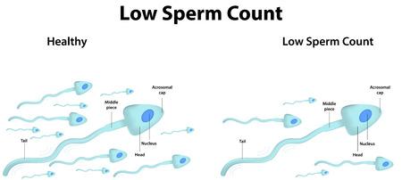 Faible numération des spermatozoïdes Banque d'images - 31015853