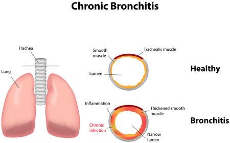 bronchitis: Chronic Bronchitis Illustration