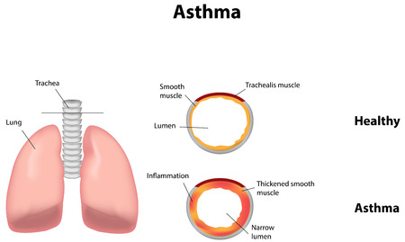asthma inhaler: Asthma