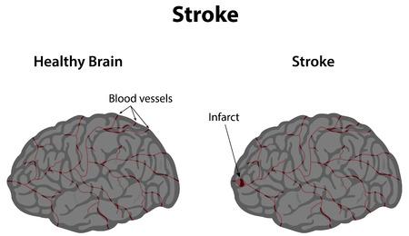 cerebral artery: Stroke