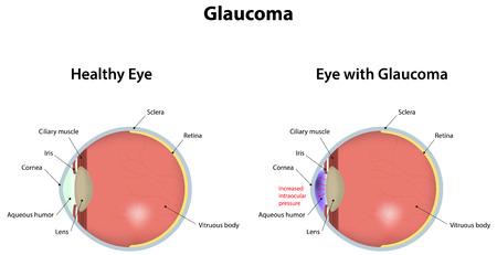 glaucoma: Glaucoma Illustration