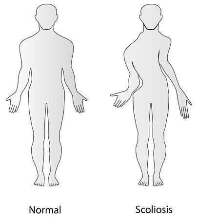 scoliosis: Scoliosis