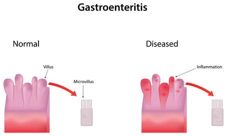 epithelium: Gastroenteritis