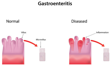 gastroenteritis: Gastroenteritis