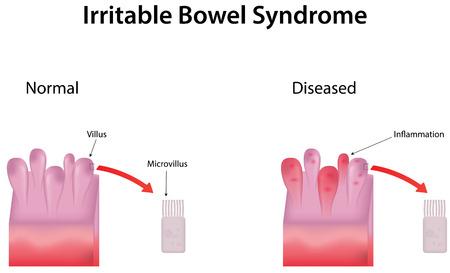 bowel: Sindrome dell'intestino irritabile Vettoriali