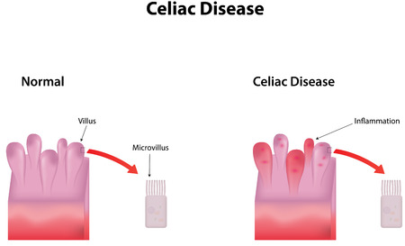 villus: Celiac Disease Illustration