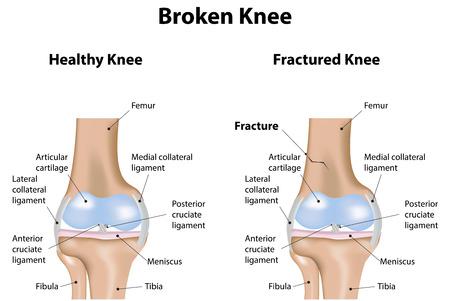 broken knee: Broken Knee Illustration