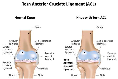 引き裂かれた膝前十字靭帯 ACL