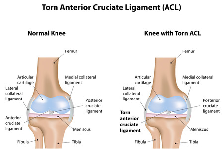 de rodillas: Torn ligamento cruzado anterior de ACL