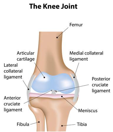 artrosis: El diagrama de articulación de la rodilla Etiquetada