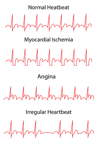 ECG Pathology