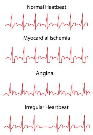 tachycardia: ECG Pathology