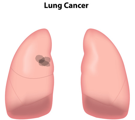 neoplasia: Lung Cancer