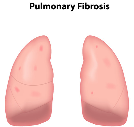 pleura: Pulmonary Fibrosis
