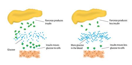 trzustka: Cukrzyca typu 2