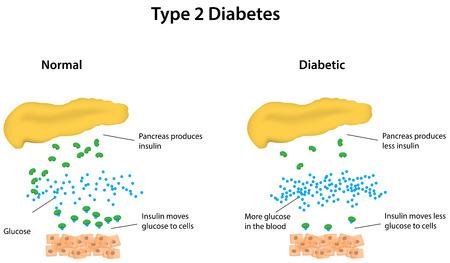 Type 2 Diabetes gelabelde Diagram Stock Illustratie