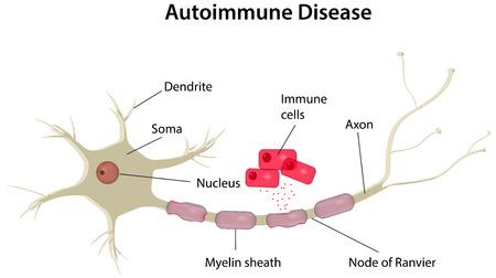 multiple sclerosis: Autoimmune Disease Illustration