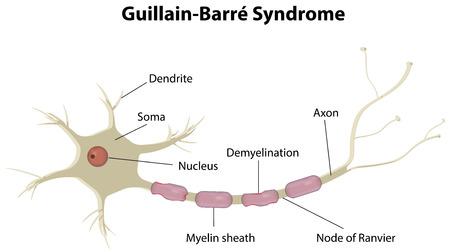 nervenzelle: Guillain-Barr�-Syndrom