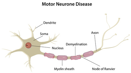 neuron: Motor Neuron Disease Illustration