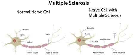 multiple sclerosis: Multiple Sclerosis Illustration