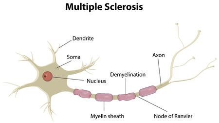 neuron: Multiple Sclerosis Illustration