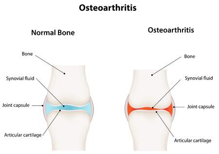 osteoarthritis: Osteoarthritis