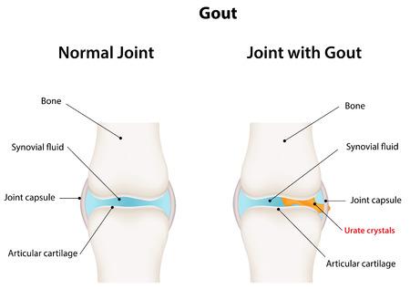 Gout  イラスト・ベクター素材