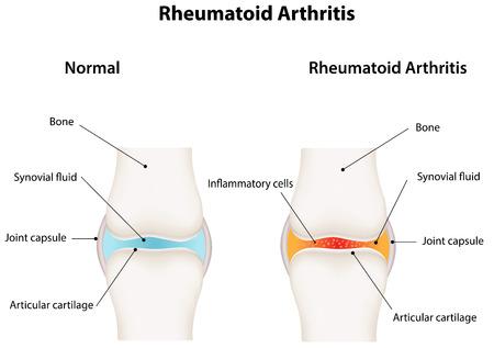 arthritis pain: Rheumatoid Arthritis