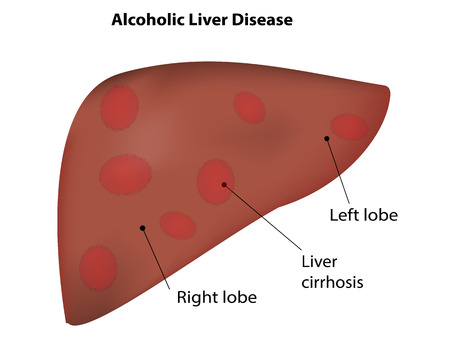 hepatitis vaccination: Alcoholic Liver Disease