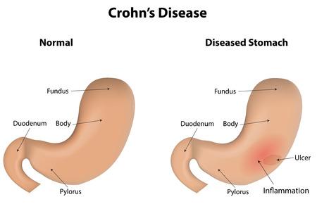 ulcer: Crohns Disease