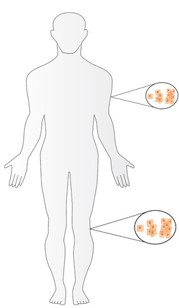 skin cancer: Skin Cancer Illustration